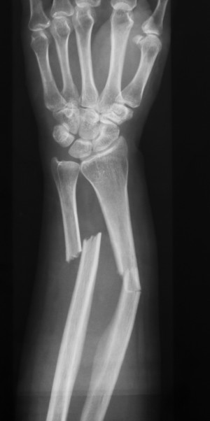 X-ray image of forearm